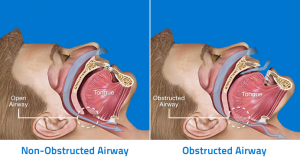 Anatomy-of-Obstructive-Sleep-Apnea (1)