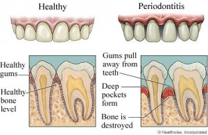 periodontal-disease (1)